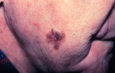 Lentigo maligna melanoma, right lower cheek. Centr