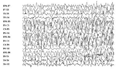 This seizure had focal onset in the right frontal