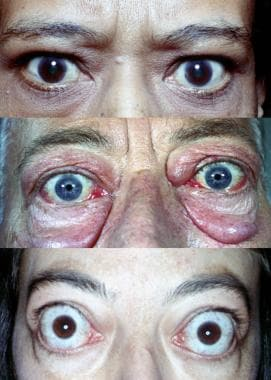 Graves disease. Varying degrees of manifestations