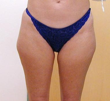 Liposuction, trunk. Frontal view of patient before