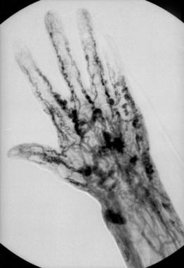 Hand angiogram demonstrating arteriovenous connect