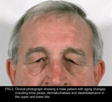 Clinical photograph showing a male patient with ag
