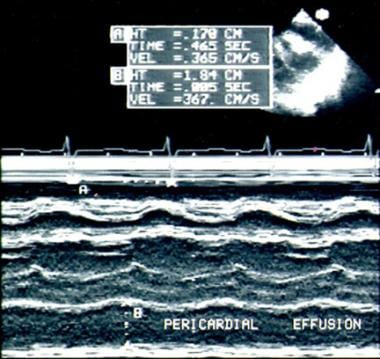 M-mode echocardiograph from child with pericardial