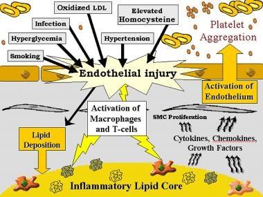 Genetic and inflammatory mechanisms in stroke. Gra