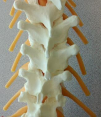 Thoracic spine. Note the very narrow interlaminar