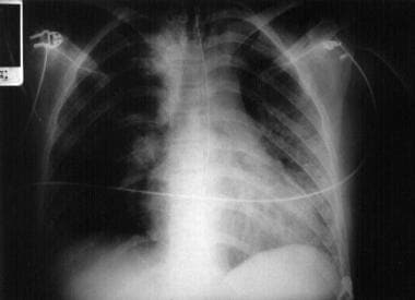 Chest radiograph of a patient with aspiration pneu