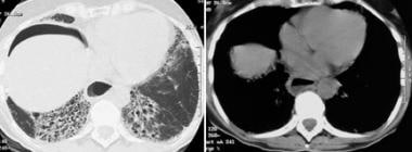 High-resolution CT demonstrates extensive basal ho