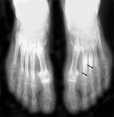 Radiograph of the feet shows fairly large para-art