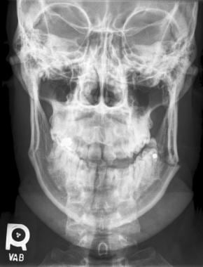 Posteroanterior radiographic view of a fracture of