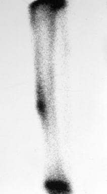 Radionuclide bone scan in a 25-year-old man with c