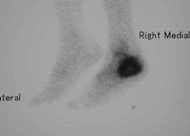Lateral isotope bone scan reveals intense uptake i