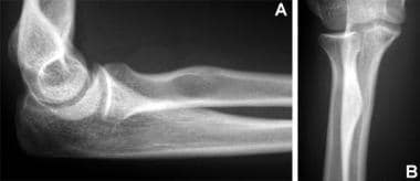 Normal radial tuberosity. (A) On the lateral view,