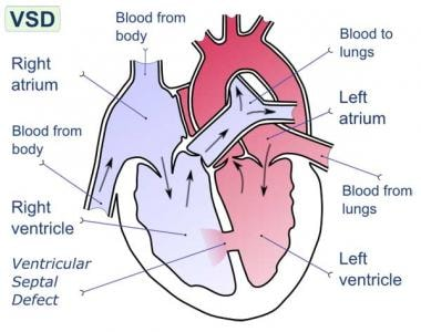 Ventricular septal defect (VSD) is defect in inter