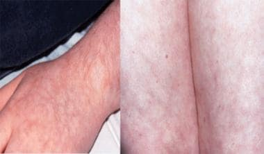 Livedo reticularis of the upper and lower extremit