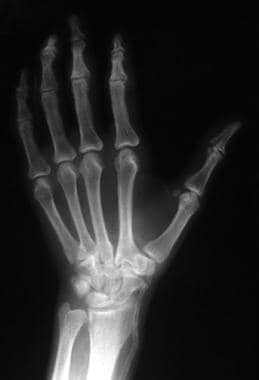 Radiologic findings of a hand in a patient with ca