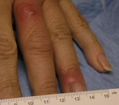 Paronychial erythema and edema with associated pus