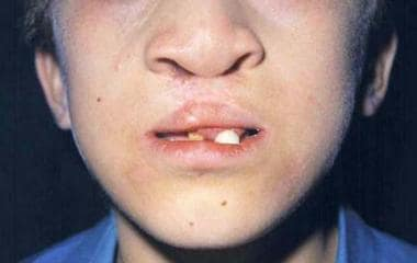 Typical cleft lip/palate and maxillary hyperplasia