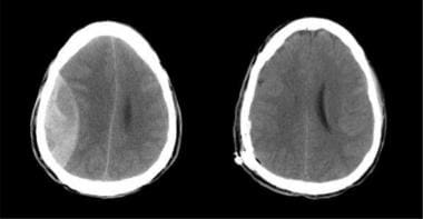 CT scanning performed before and after surgical ev