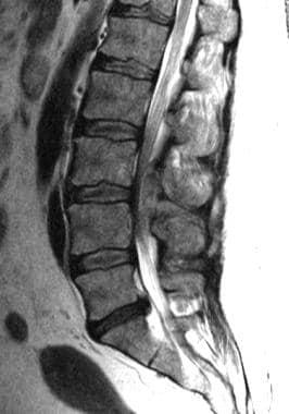 Spinal epidural abscess lumbar area.