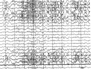 Epileptic and epileptiform encephalopathies. EEG s