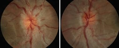 Optic disc swelling in the right eye and left eye