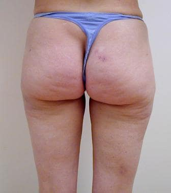 Liposuction, trunk. Posterior view 3 months after