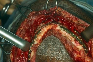 Mandibular fracture. Intraoperative view demonstra