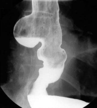 Esophagram demonstrating a dilated tortuous esopha