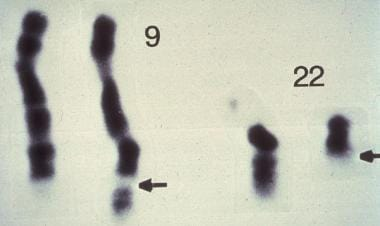 The Philadelphia chromosome, which is a diagnostic