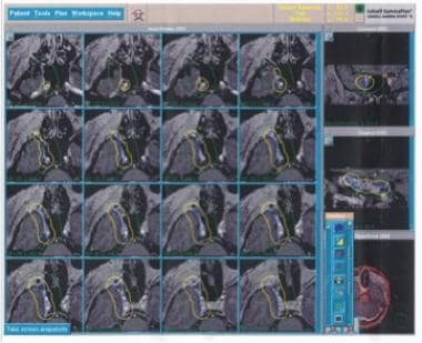 Gamma knife radiosurgery plan. This patient presen