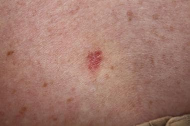 A pink, scaly lesion on the skin. Superficial basa