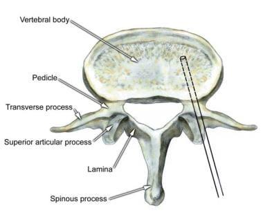 Percutaneous vertebroplasty, transpedicular approa