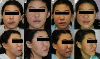 Panel A: 12-year-old female with right facial arte