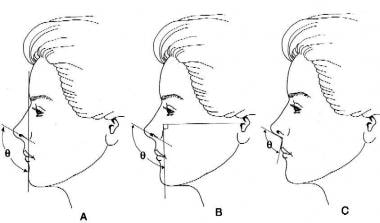 Three methods of analyzing tip rotation. Method A
