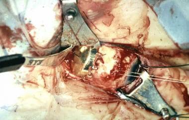 Intraoperative photograph showing placement of a r