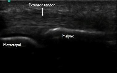 Ultrasonographic image of a finger. Note the hyper