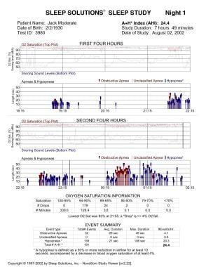 Sleep study: Moderate obstructive sleep apnea (OSA