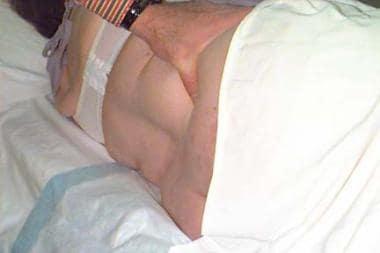 Patient position (posterior superior iliac crest).