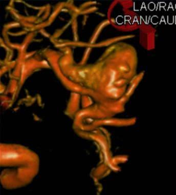 Digital subtraction angiogram, right internal caro