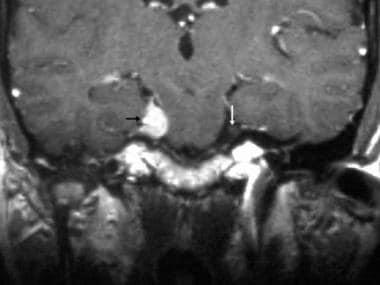 Trigeminal schwannoma. Coronal contrast-enhanced T