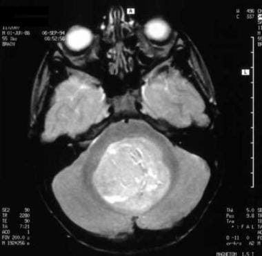 Medulloblastoma. Axial T2-weighted image reveals a
