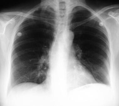 Pulmonary arteriovenous malformations in the left