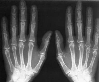 Radiograph of both hands in a patient who also has