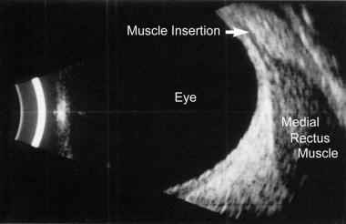 B-scan ultrasonogram reveals enlargement of the ex