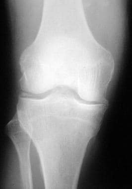 Anteroposterior (AP) radiograph of the right knee