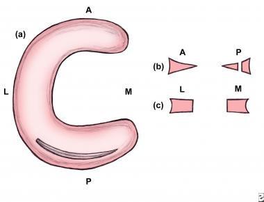 Axial illustration of a full-thickness longitudina