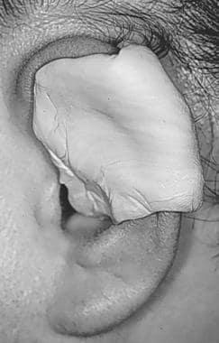 Ear splint.