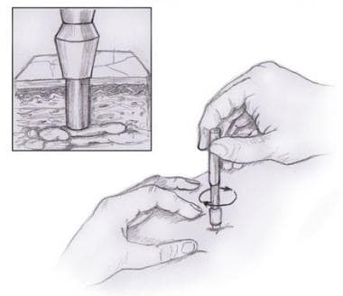 Illustration of punch biopsy being performed.