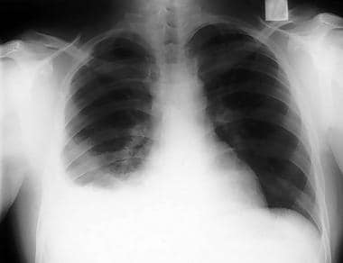 Upright posteroanterior chest radiograph of a chil