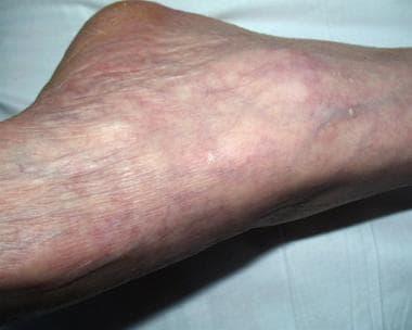 Stucco keratosis in a 70-year-old male veteran. A